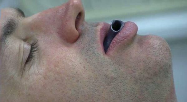 3D печать для лечения апноэ сна